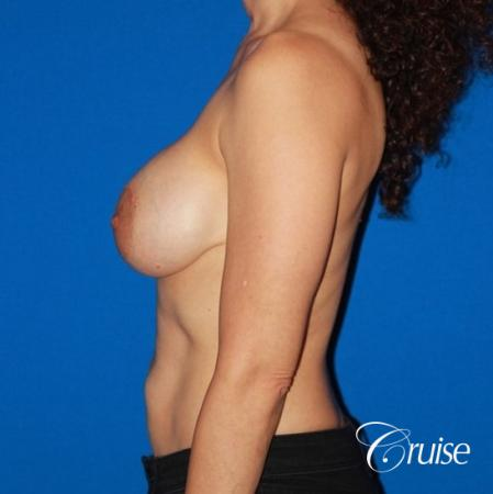 best breast lift revision with high profile silicone 425cc - Before Image 2