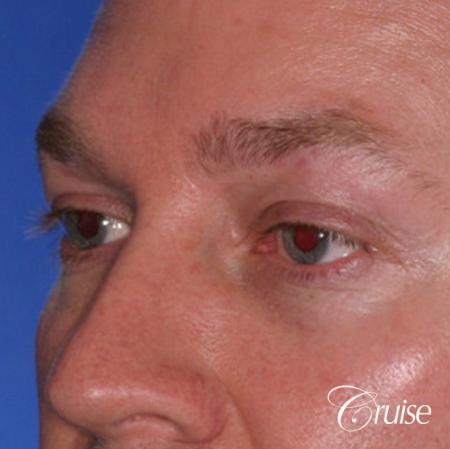 male soft tissue filler Juvaderm -  After Image 2