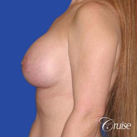 best breast lift donut scars in Newport Beach -  After Image 2