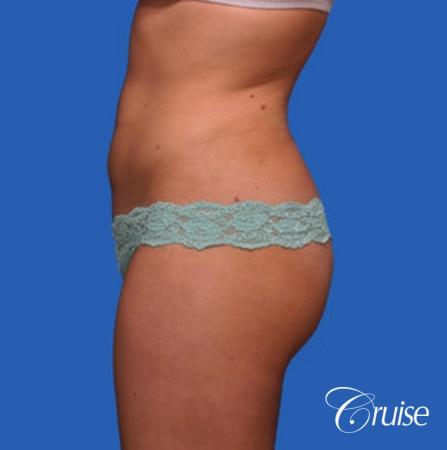 best liposuction results on abdomen, flanks, thighs -  After Image 3
