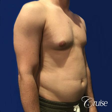 Moderate Gynecomastia -Puffy Nipple -Areola Incision - Before and After Image 4