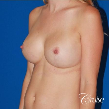 best breast lift anchor with High profile silicone 500cc implants -  After Image 3