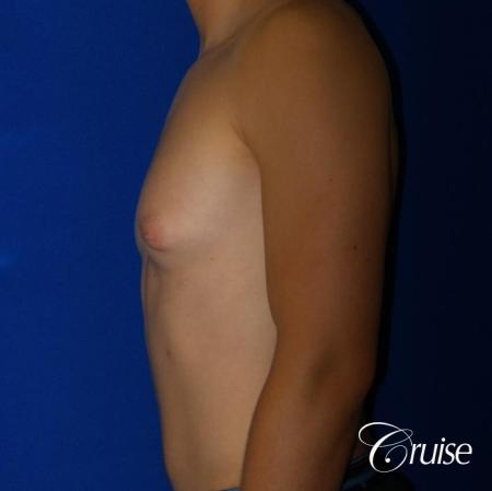 Mild Gynecomastia -Areola Incision - Before Image 3