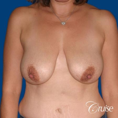 best breast reduction no implants - Before Image 1