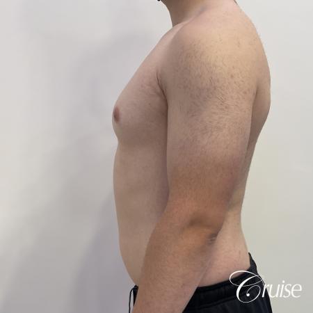 Gynecomastia: Patient 123 - Before 3