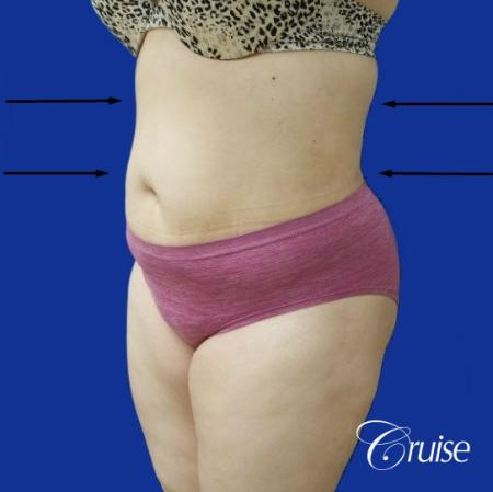 Best liposuction procedures dr cruise -  After Image 3