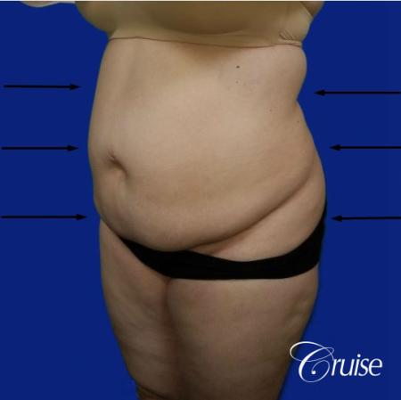 Best liposuction procedures dr cruise - Before Image 3