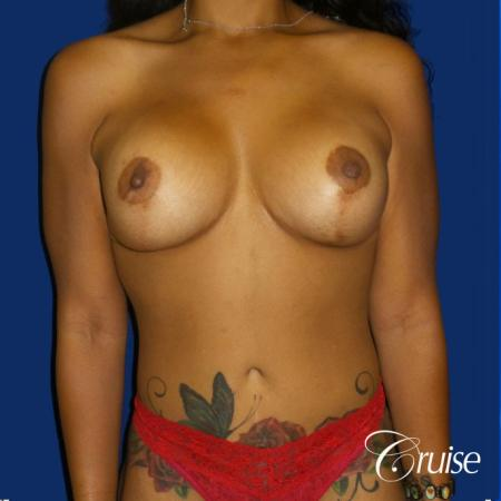 Standard Tummy Tuck, Breast Lift Anchor With Silicone - After Image 1