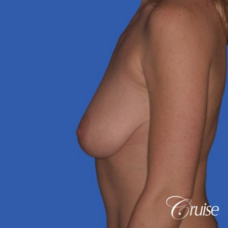 best breast reduction without implants - Before Image 2