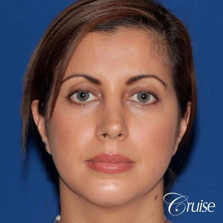 woman with large anatomic chin implant -  After Image 1