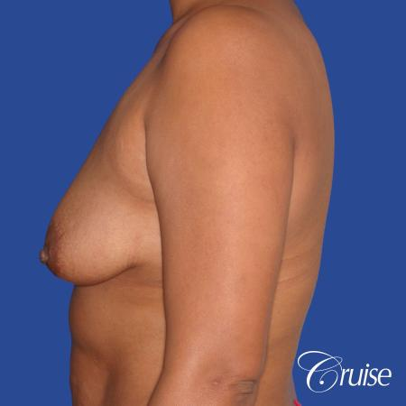 best breast lift donut with saline augmentation - Before Image 2