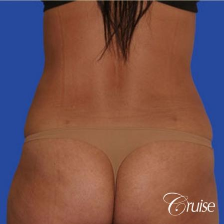 best flanks lipo before and after pictures - After Image