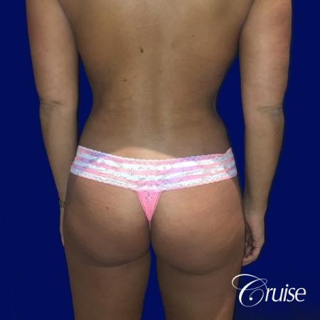 Liposuction Abdomen and Flanks with Midline Contour - After Image 4