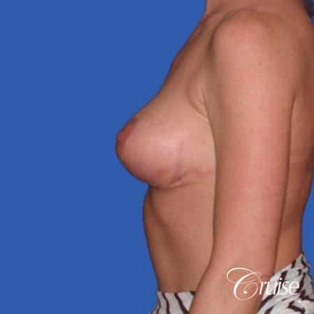 no implants with breast lift anchor -  After Image 2