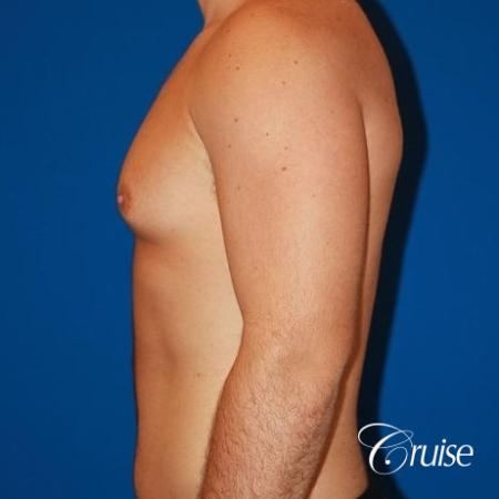 athletic adult with puffy nipple - Before Image 2