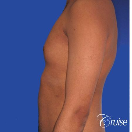 best before and after results for gynecomastia surgery - Before Image 2