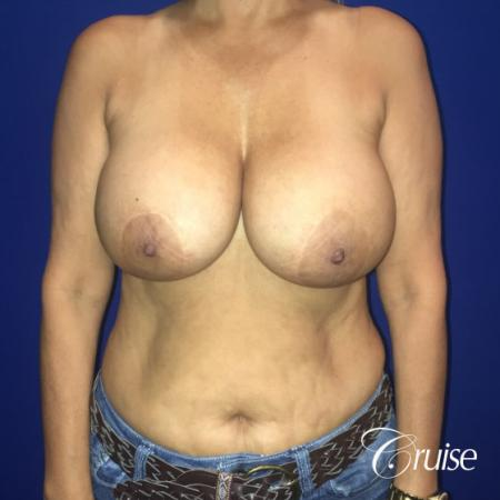 Best Breast reduction results and recovery - Before Image