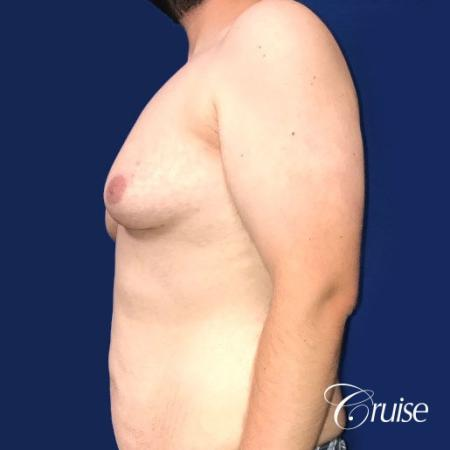Pedicle incision Dr. Cruise Newport Beach CA - Before Image 2