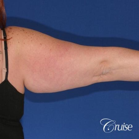 best recovery and photos of arm lift orange county - Before Image 2