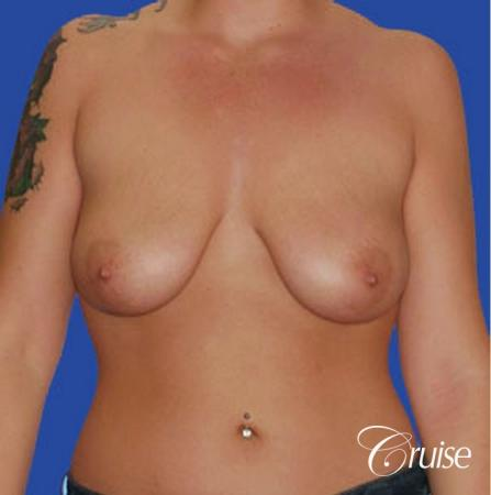 best photos of 20 yr old with saline breast reduction surgery - Before Image 1