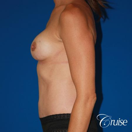 best ultra low tummy tuck scar with breast augmentation -  After Image 2