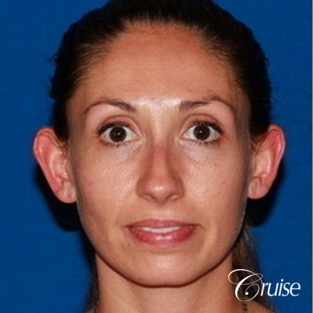 best adult otoplasty on women - Before Image
