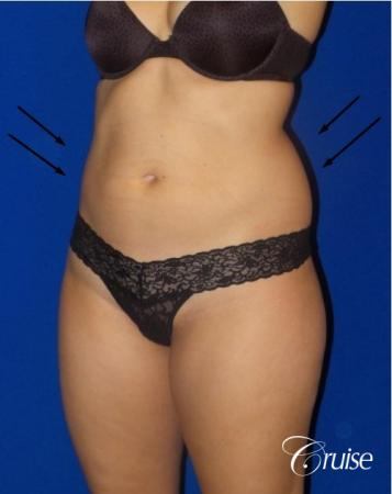Liposuction -  Flanks - Before Image 2