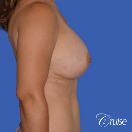 best saline breast reduction -  After Image 2