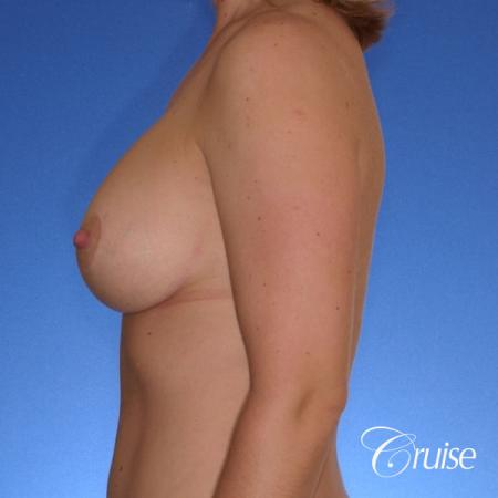 best breast lift anchor with silicone implants on 40 year old woman -  After Image 2
