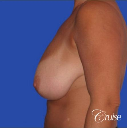best pictures of breast lift anchor on 38 yr old mother - Before and After Image 2