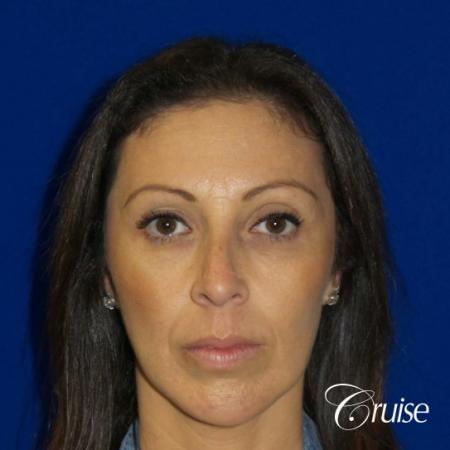 Brow Lift - After Image