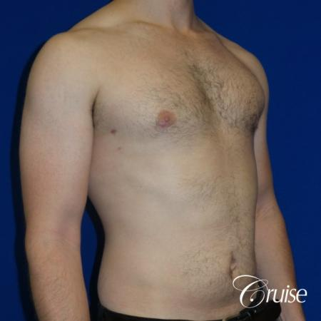 Adult gynecomastia pictures -  After Image 2