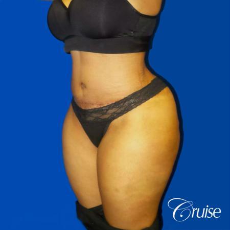 Best Tummy Tuck surgeons Newport Beach -  After Image 2