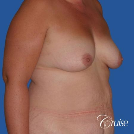 best mommy makeover and breast lift anchor results - Before Image 3