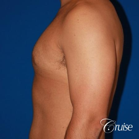 moderate gynecomastia on adult -  After Image 2