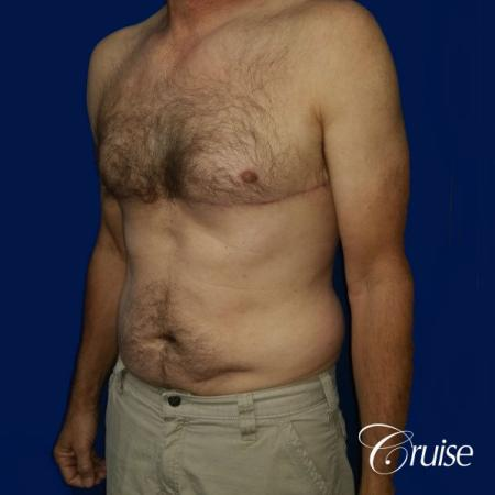 Moderate Gynecomastia Pedicle - After Image 3