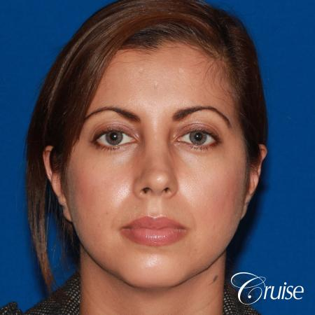 woman with large anatomic chin implant - Before Image 1