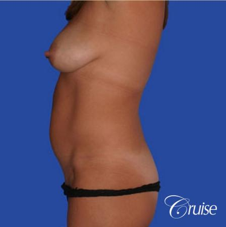 mommy makeover with best breast lift anchor with saline implants - Before Image 2