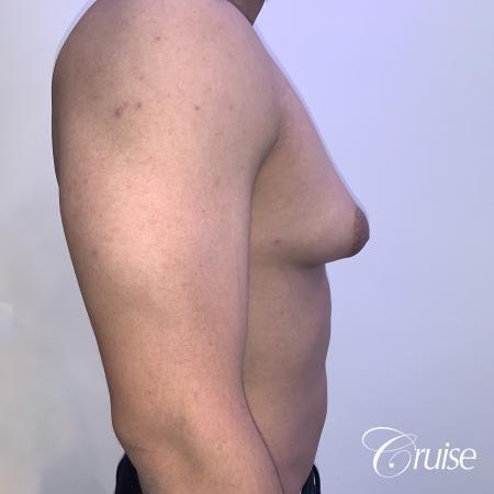 gynecomastia surgery - Before 4