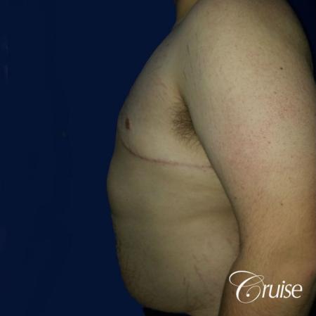 Moderate Gynecomastia Pedicle - After Image 2