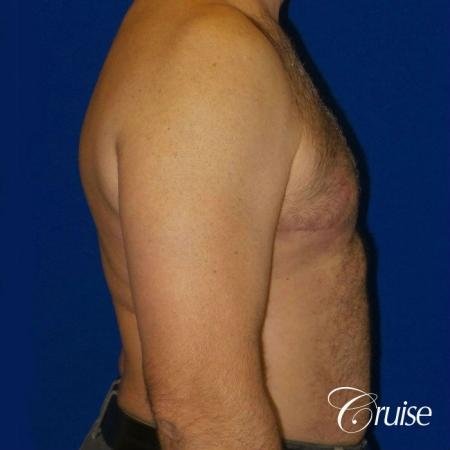 Severe Gynecomastia Correction -  After 3