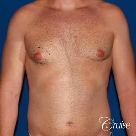 best puffy nipple surgery correction - Before Image 1
