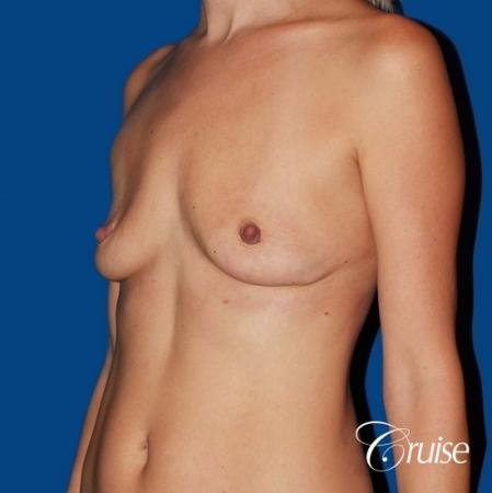 best breast lift anchor with High profile silicone 500cc implants - Before and After Image 3