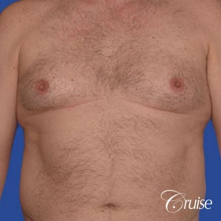 chest liposuction on adult - Before Image 1