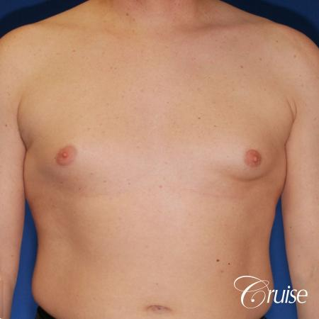 moderate gynecomastia on adult with donut lift scar - Before Image 1