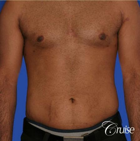 best liposuction abdomen and flanks on a male patient - After Image
