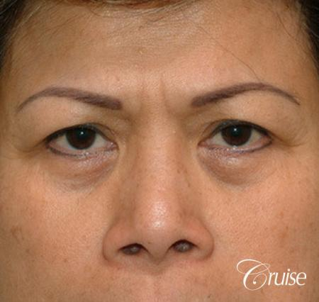 best Asian Upper eye lid plastic surgeon Newport Beach - Before Image