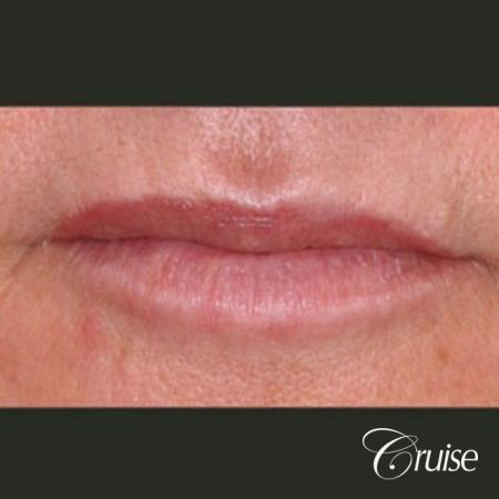 best lip augmentation with juvaderm - Before Image