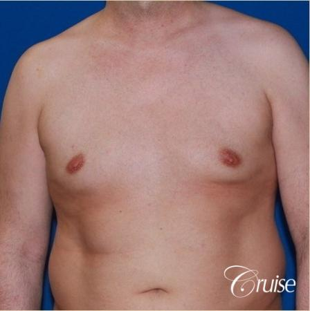 Free Nipple Graft male gynecomastia - Before Image 1