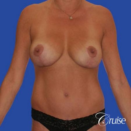 mommy makeover with best breast lift anchor with saline implants -  After Image 1
